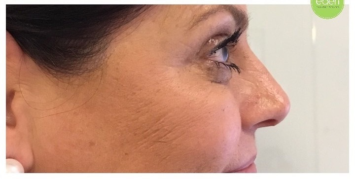 Eden Cosmetic Therapies Anti Wrinkle To Crows Feet A