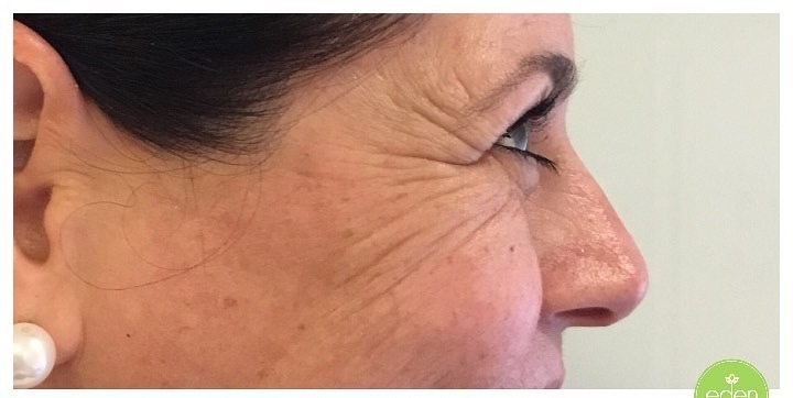 Eden Cosmetic Therapies Anti Wrinkle To Crows Feet B