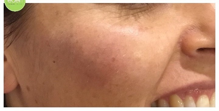 Eden Cosmetic Therapies Dermal Filler To Cheeks A