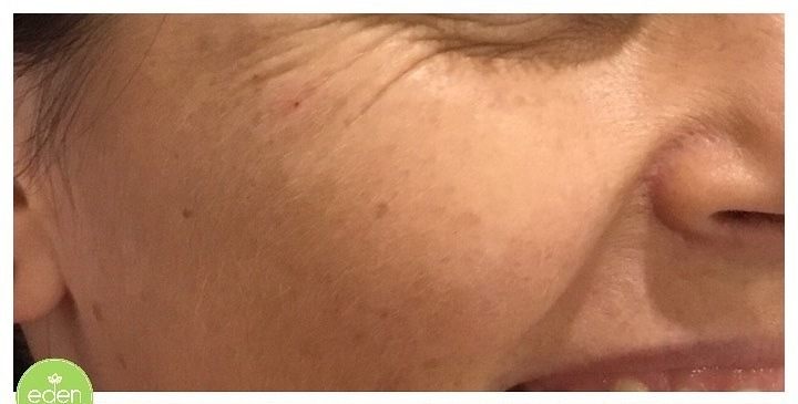 Eden Cosmetic Therapies Dermal Filler To Cheeks B