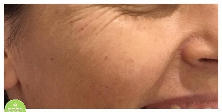 Eden Cosmetic Therapies Dermal Filler To Cheeks B