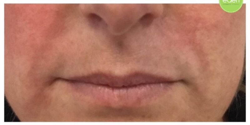 Eden Cosmetic Therapies Dermal Filler To Nasolabial Fold (lines From Nose To Mouth) A
