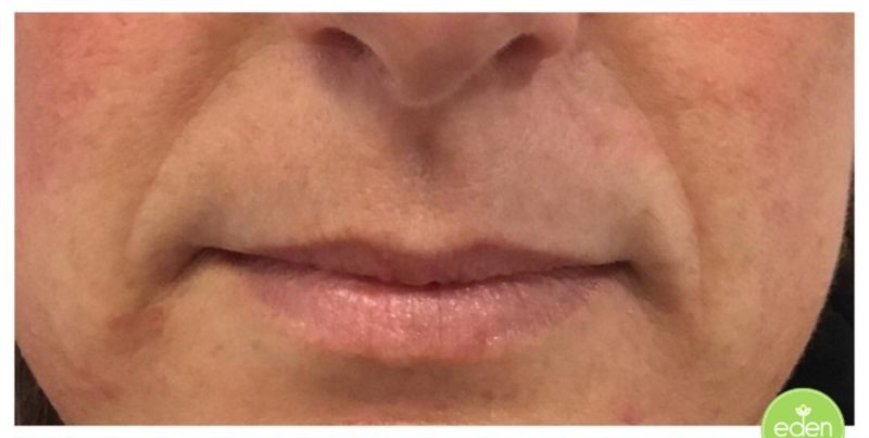 Eden Cosmetic Therapies Dermal Filler To Nasolabial Fold (lines From Nose To Mouth) B