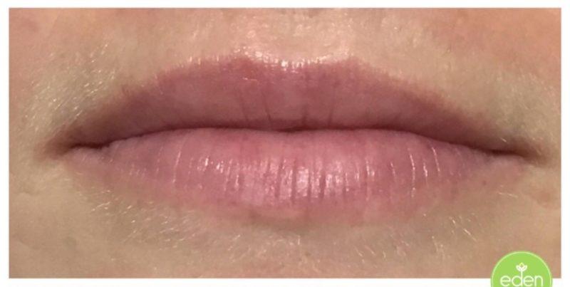 Eden Cosmetic Therapies Lip Filler 1