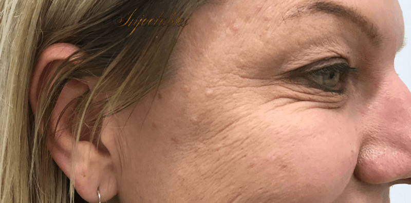 Enhance Ci Anti Wrinkle Crows Feet A