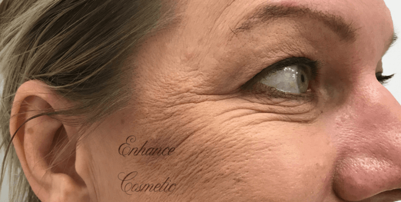 Enhance Ci Anti Wrinkle Crows Feet B
