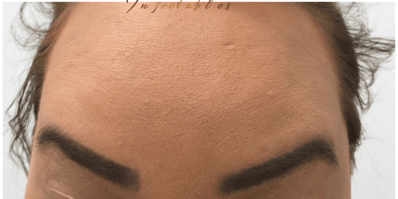 Enhance Ci Antiwrinklefrownforehead A