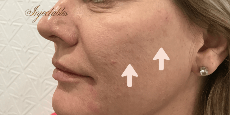 Enhance Ci Cheeks Dermal Filler A