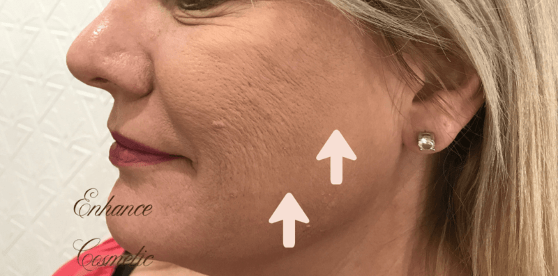Enhance Ci Cheeks Dermal Filler B