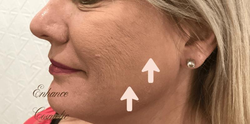 Enhance Ci Cheeks Dermal Filler B