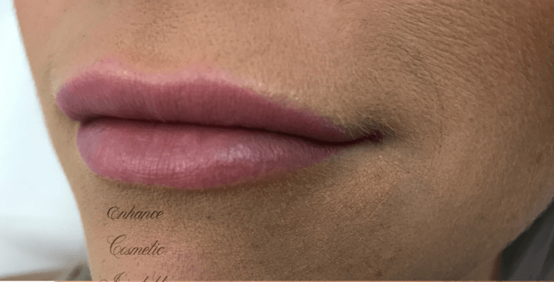 Enhance Ci Lip Filler B