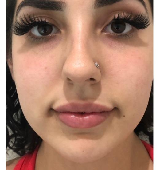 Sl Cosmetic Lips A Copy