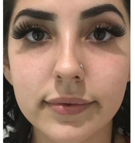 Sl Cosmetic Lips B Copy