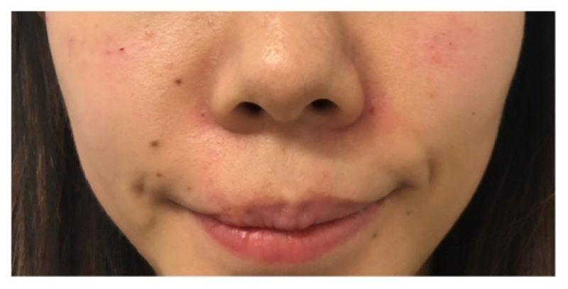 Sl Cosmetic Nasolabial Fold A