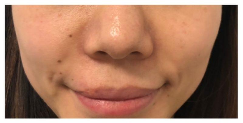Sl Cosmetic Nasolabial Fold B
