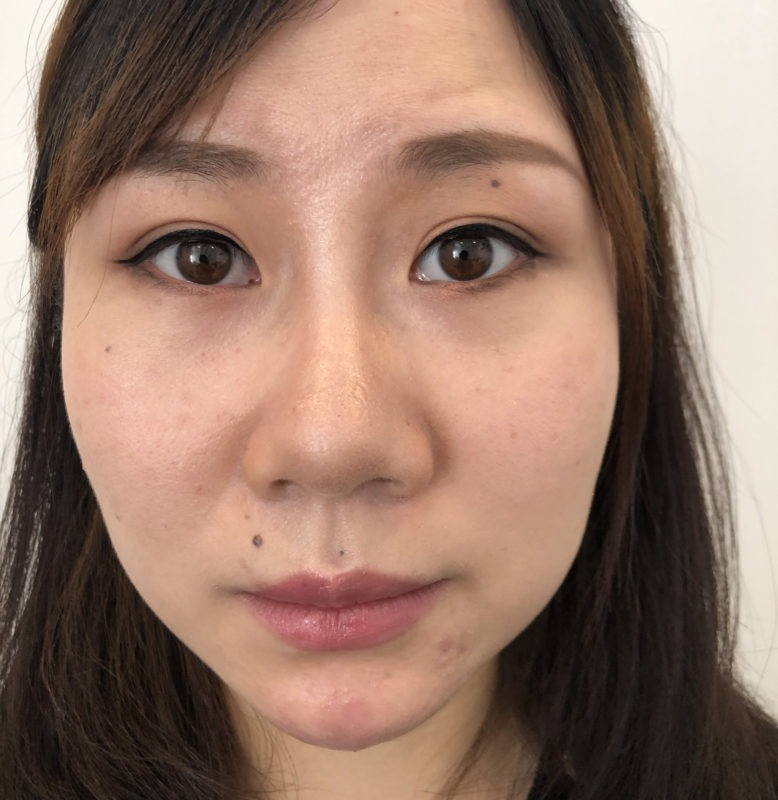 Sl Cosmetic Post Masseter And Chin A Copy