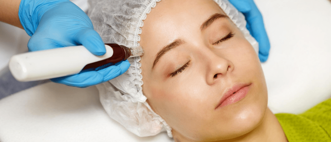 Benefits of micro-needling