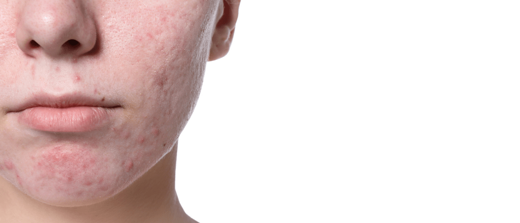 Treatment For Severe Acne