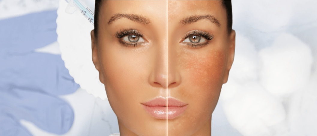 Uneven Skin Tone: What Causes It And The Best Available Treatments